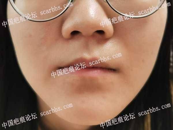 右面部凸起疤痕伴色脱治疗恢复过程