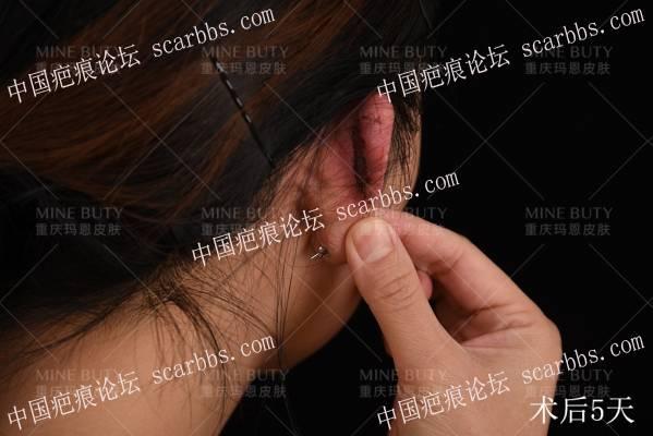 耳部疤痕疙瘩微创手术结合浅放SRT-100防复发综合治疗案例。