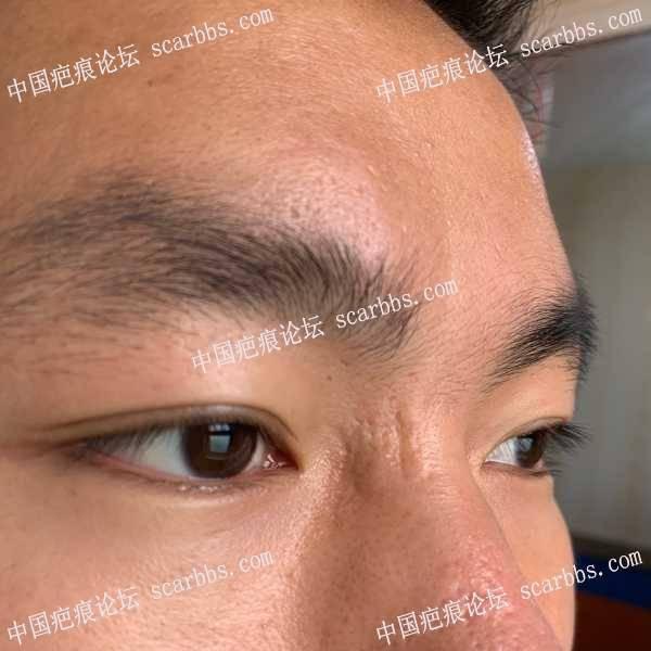 2020.12.24第三次来找杨教授切缝鼻部凹陷疤痕。