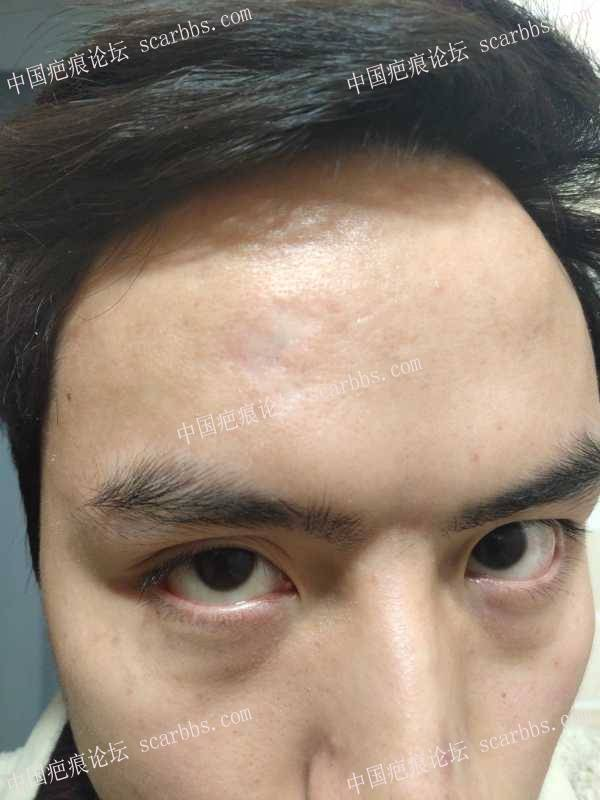求帮助,面部的疤痕该怎么治疗