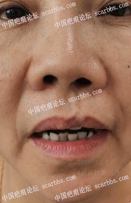 唇裂术后修复半年对比