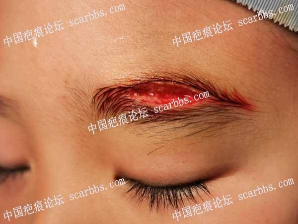 早期外伤的精细缝合