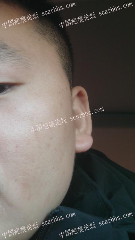 脸被抓伤快4个月了,有色沉和轻微表皮凹陷,跪求大佬指点治疗方法!