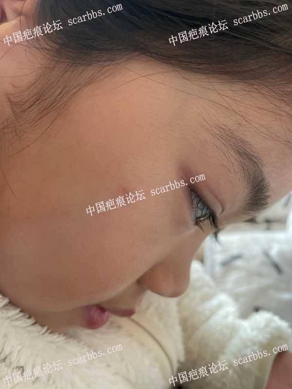 宝贝脸上留下了疤我想问问要怎么淡化