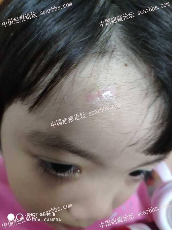 宝宝摔伤额头,缝五针目前疤痕明显