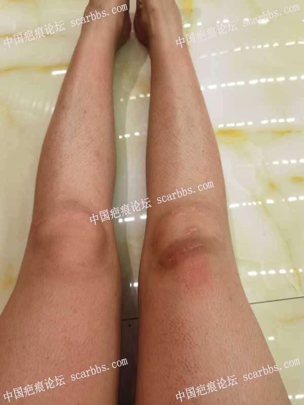 疤痕切缝加放疗(放疗!一定要慎重!!!)