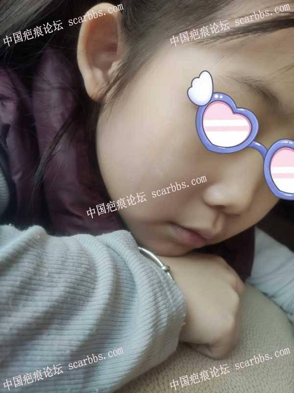 孩子五岁磕伤脸颊