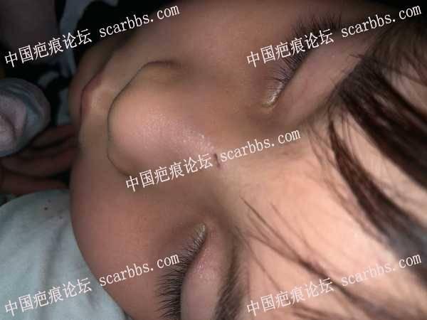 孩子又把自己鼻子抓伤,求助