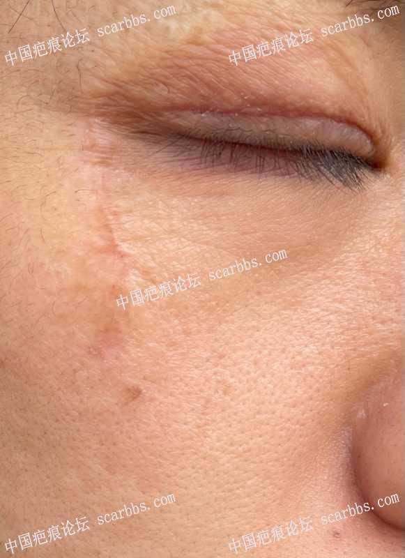 12月23日 上眼睑陈旧性烫伤疤痕切开脂肪填充修复