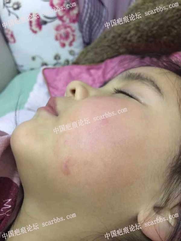 宝贝面部被铁管卡伤,求助!!