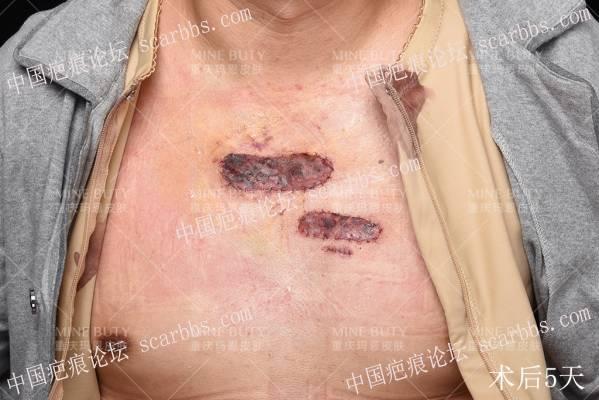 胸前8年疤痕疙瘩手术+浅放防复发案例