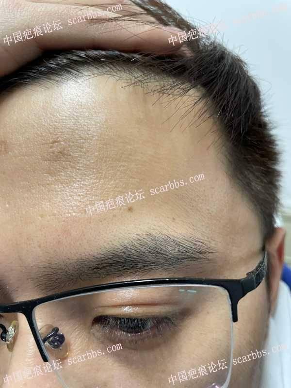 水痘的凹陷疤痕,宁波哪里看比较好?