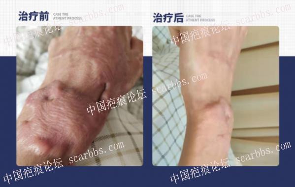 19岁手部疤痕增生 离子束治疗前后效果对比