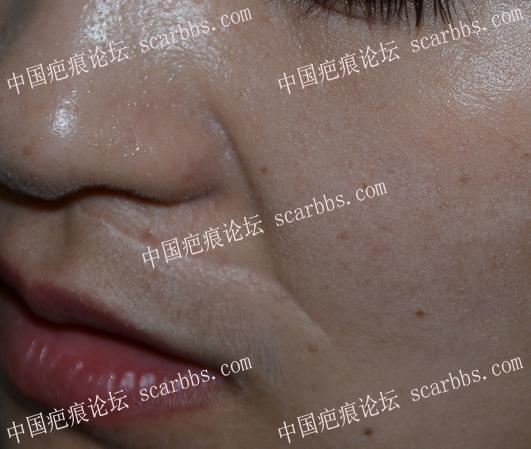 记录面部外伤疤痕手术修复