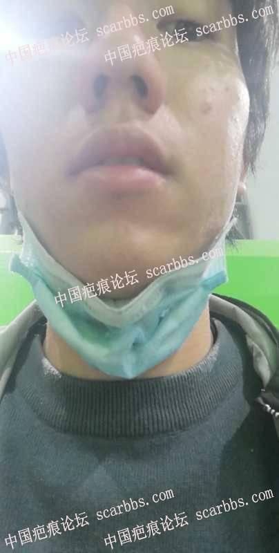 嘴唇白色磕伤疤痕,怎么治疗?