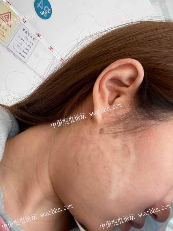 面部疤痕,扩张器手术记录