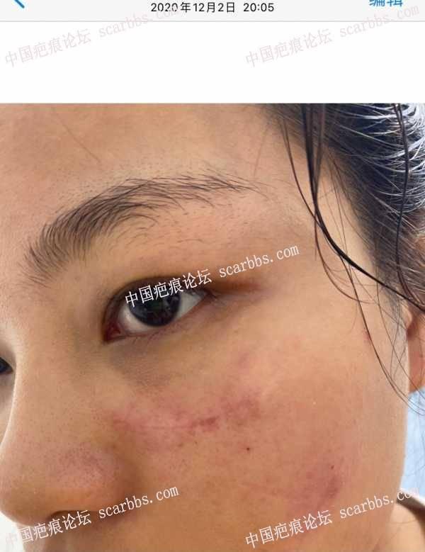 2020年10月6日做的切缝  面部凹陷疤痕记录