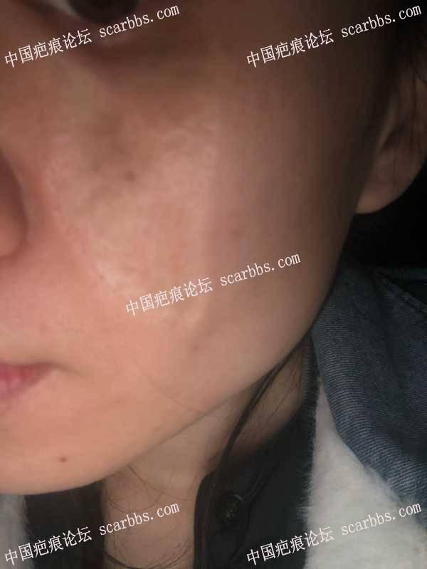 面部的烫伤疤痕,扩张器手术怎么样?