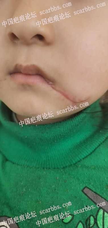 这样的面部疤痕如何治疗