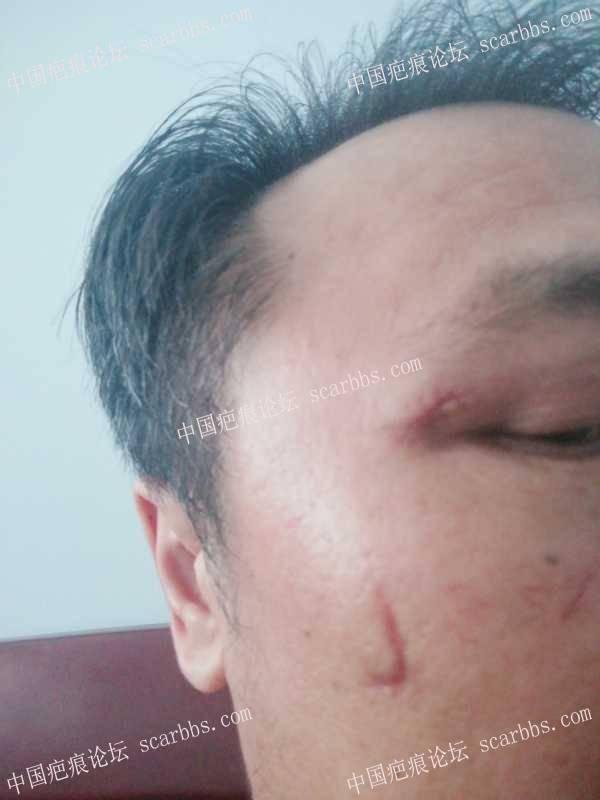 面部疤痕怎么去除,能修复到什么程度