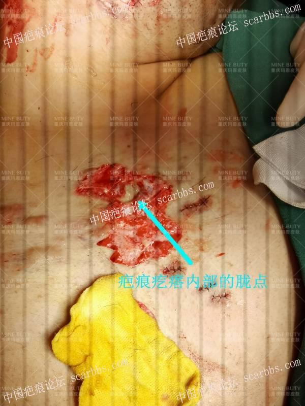 这样的疤痕疙瘩/瘢痕疙瘩只能手术切除!