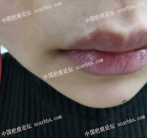 嘴唇上方手术祛痣疤痕2年了,求推荐医生