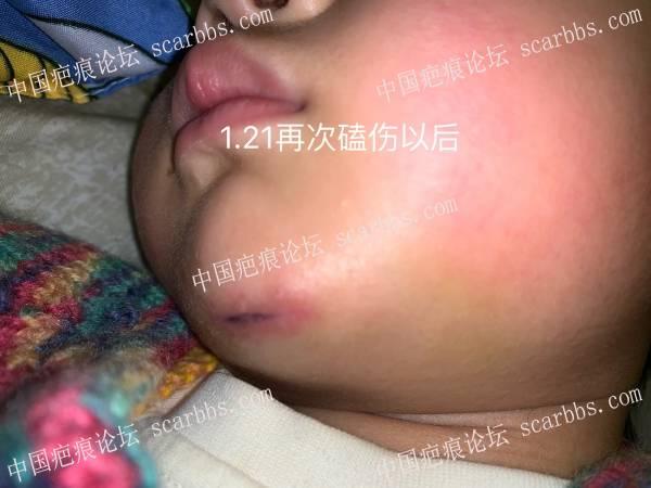 宝宝下巴拆线后伤口附近发红,求助