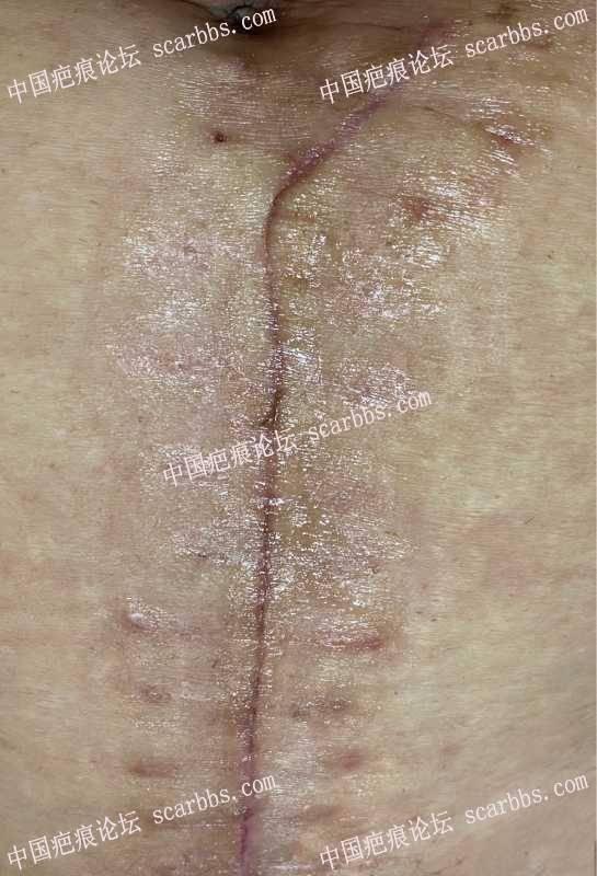 新疤:用减张器的同时,需要同时用祛疤药和美皮护吗?