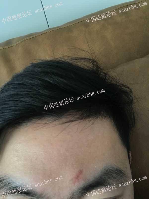 额头被眼镜框割伤缝针,这个伤口怎么处理才不会留疤