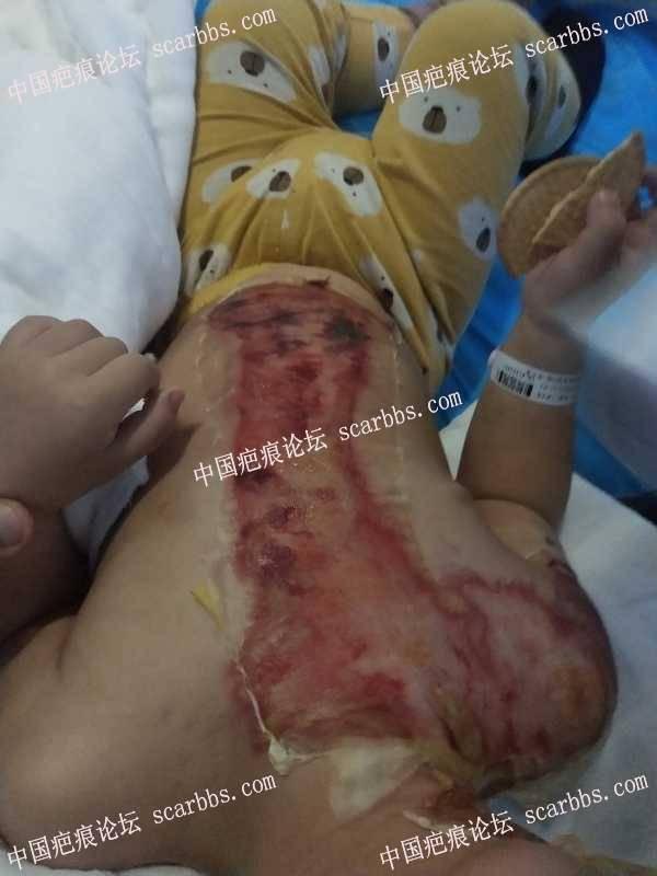 宝宝胸部一年的烫伤疤痕该怎么修复