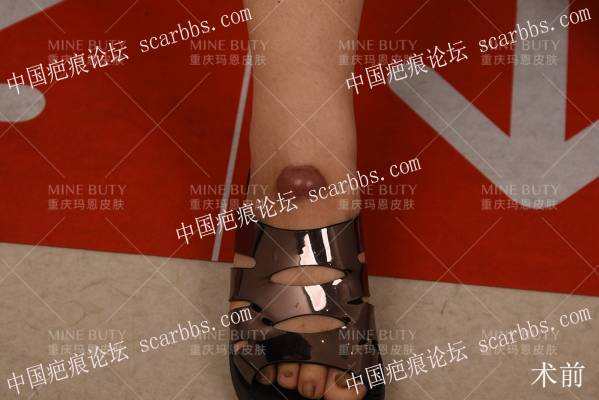膝关节及足背外伤导致疤痕增生1年