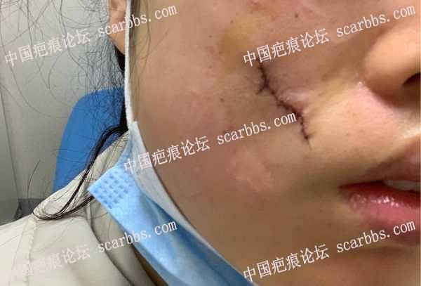 面部20多年的凹陷疤痕切缝了