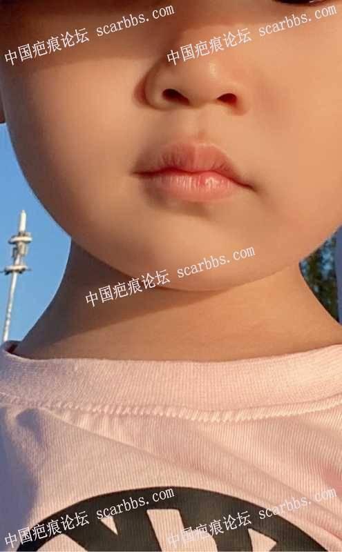 2岁宝宝嘴唇受伤有硬块,跪求大家