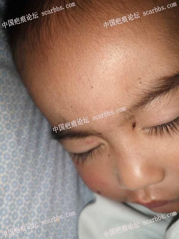 @崩溃了,脸每天都受伤,这么可爱的小孩一脸