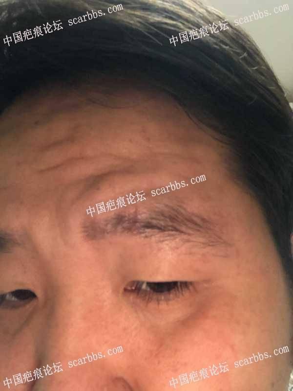 眉部磕伤是否会留下疤痕?