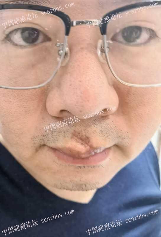 嘴唇和人中的疤痕怎么修复,求推荐