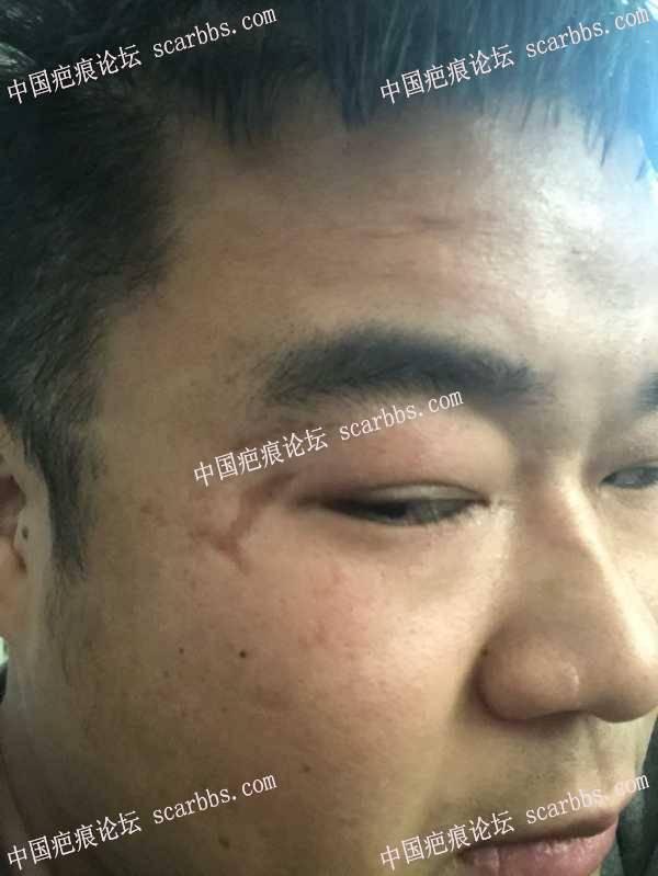 我我这个凹陷疤痕怎么去,南京有没有好的医院 凹陷疤痕