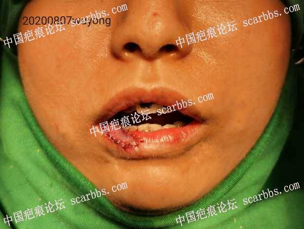 小儿嘴部血管瘤治疗后右下唇缺损畸形治疗过程