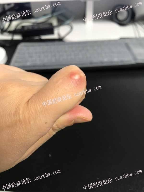 手指摔伤形成疤痕,怎么治疗好?
