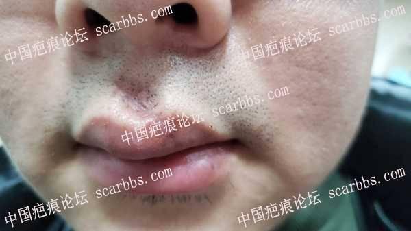 人中嘴唇疤痕求助治疗方案