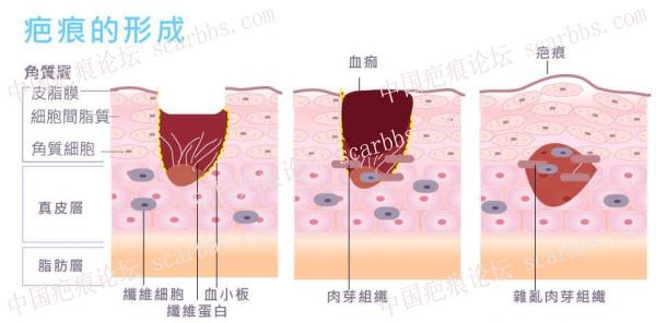 疤痕体质受伤后如何护理避免留疤?