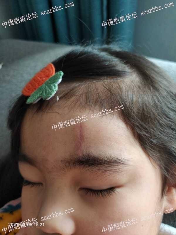 四岁孩子磕破额头,外科普通缝合6针