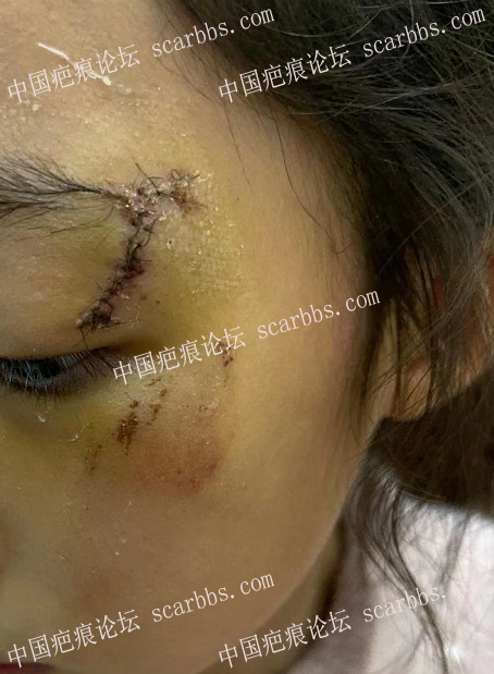 李高令2021年接治脸碰伤(缝十一针)的孩子(深圳)