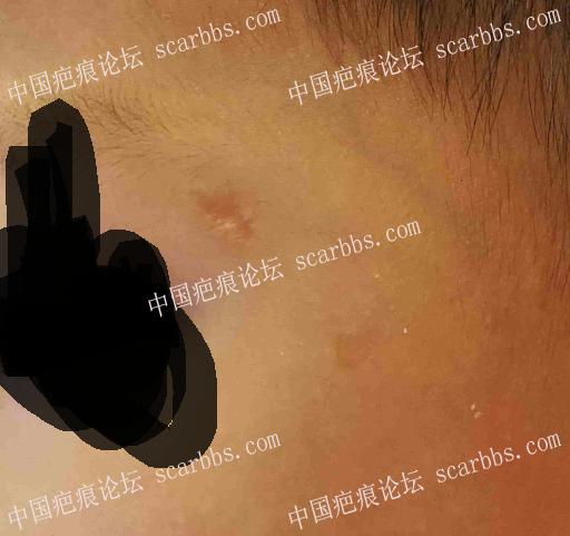 小孩子眉毛边缘磕伤,这个疤痕能自愈吗,需要做手术吗