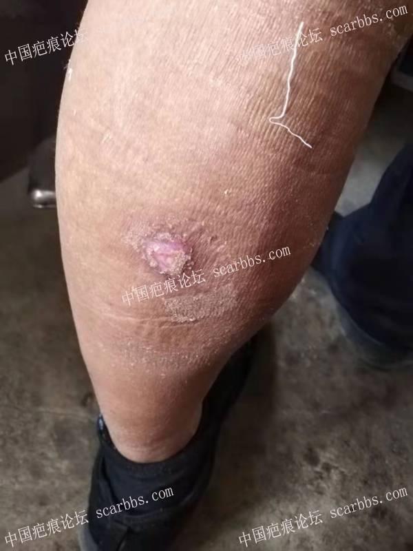李高令2021年接治艾灸受伤(延误治疗)的患者(潍坊高密)