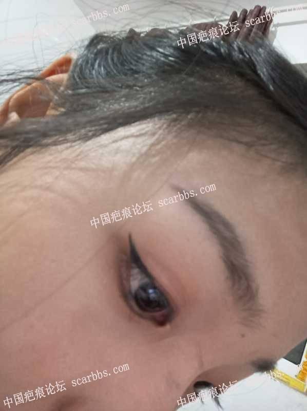 从小摔的两眼中间凹陷疤痕 凹陷疤痕