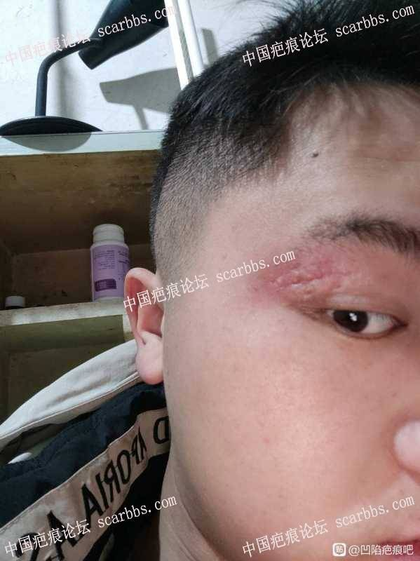 眼角旁的凹陷疤痕,应该怎么修复?
