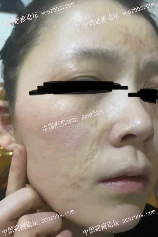 面部的烧伤疤痕24年,修复求建议?