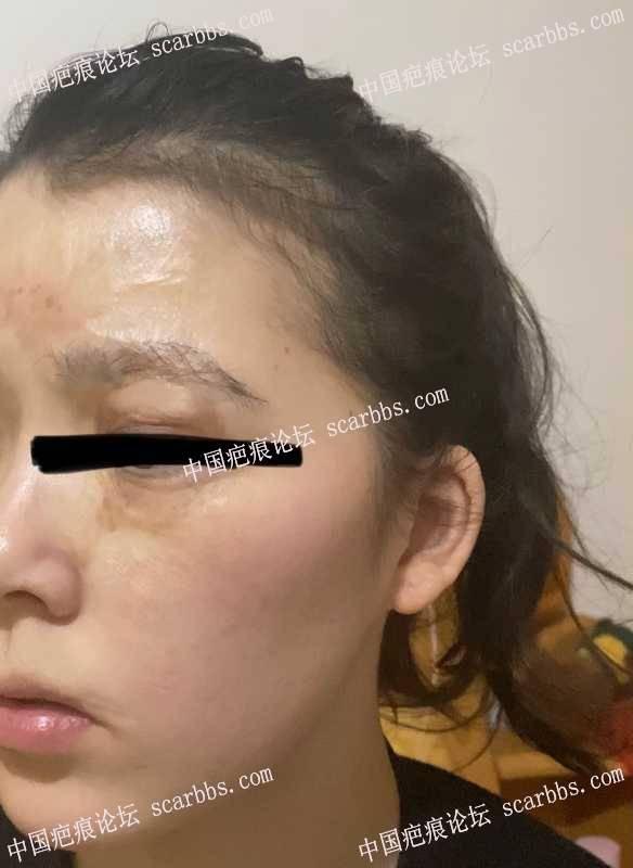 24岁,面部烧伤24年,求建议?