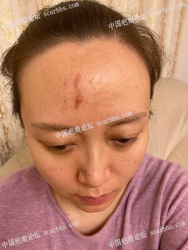 额头疤痕增生,求大神指点,怎么办?
